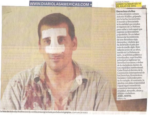 ANTONIO RODILES GOLPEADO Y TABIQUE FRACTURADO EN CUBA